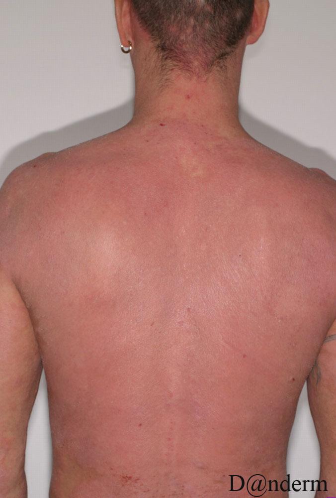 dermatitis picture