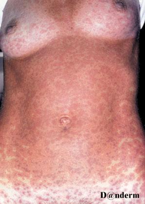 erythema multiforme treatment steroids