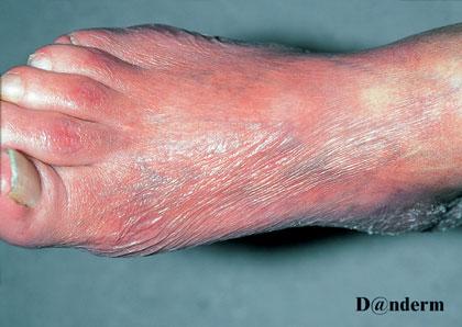 DermIS  Acrodermatitis Chronica Atrophicans Herxheimer